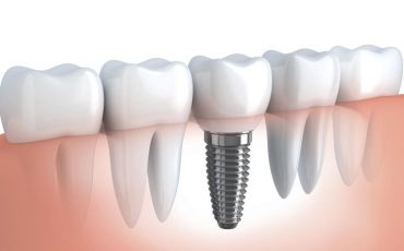 Implanty zębów- przeciwwskazania?